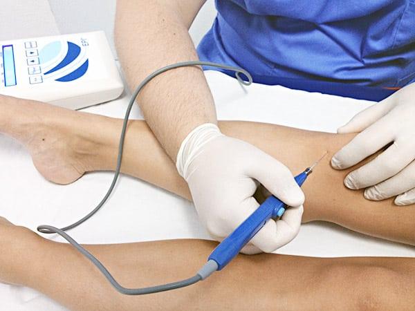 Electrólisis Percutánea Intratisular (EPI®) - AD Fisioterapia Valencia