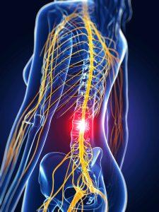 Dolor lumbar sistema nervioso central