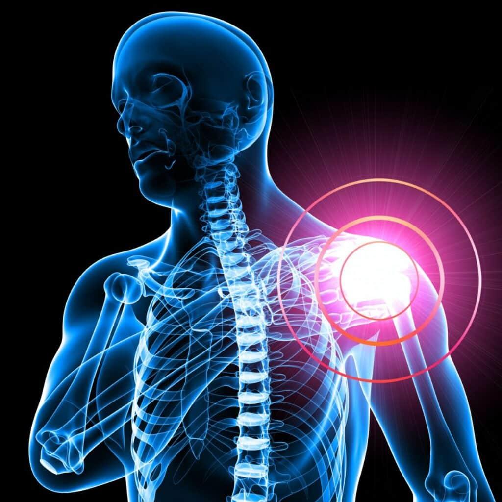 capsulitis retractil