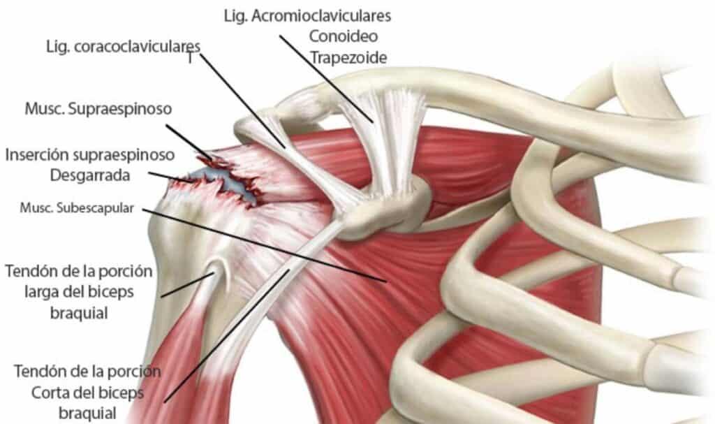 Rotura del supraespinoso