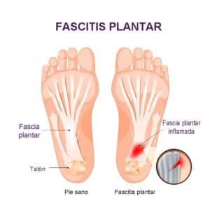 Fascitis plantar síntomas