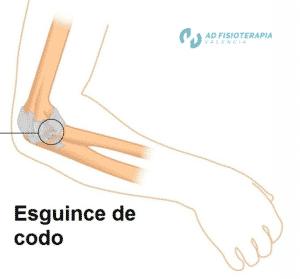 Esguince de ligamentos del codo