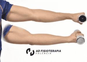 tratamientos fisioterapia esguince de codo