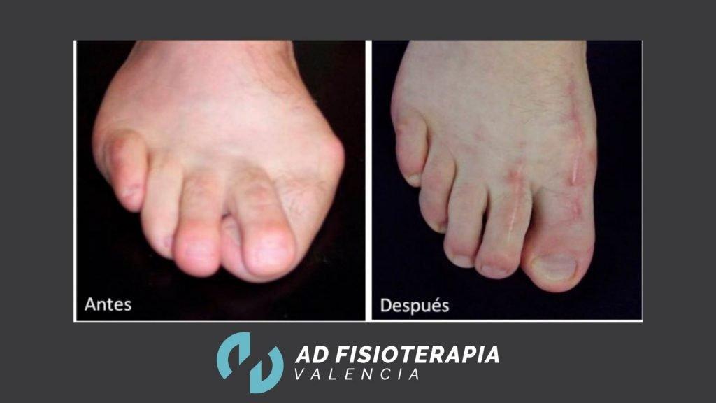 cirugia de pie
