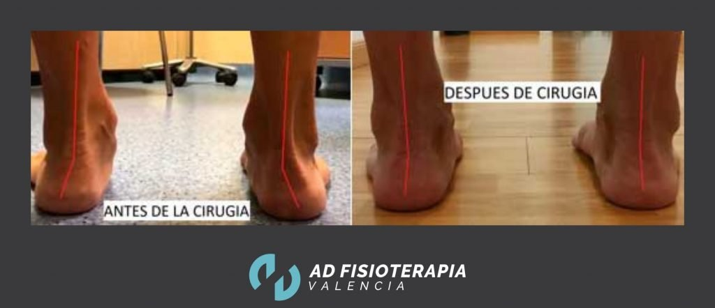 cirugia de pie plano