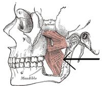 pterigoideo medial