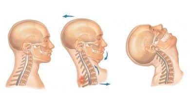wad cervical